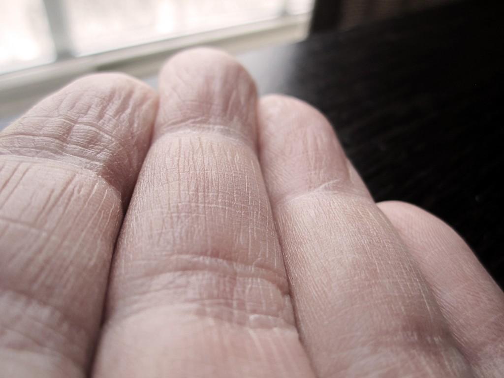 February 22nd. My fingers.